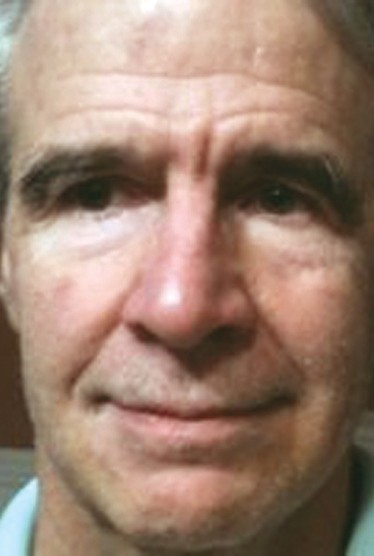 Robert Shattuck
